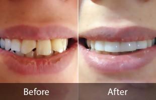 اصلاح شکستگی دندان ها
