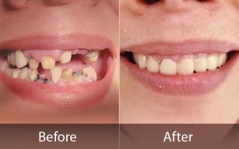 قبل و بعد از اصلاح دندان ها