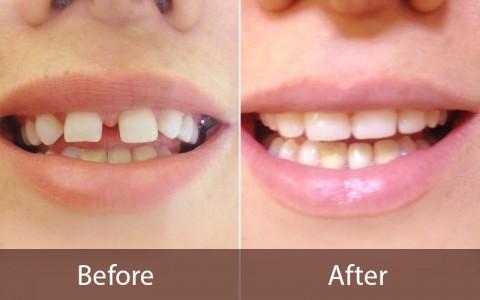 قبل و بعد از مرتب کردن دندان ها
